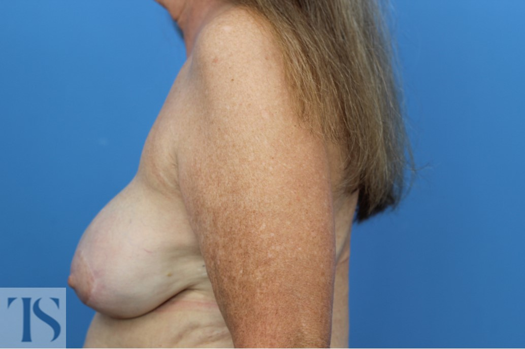 Breast Reconstruction Latissimus with Implant
